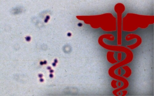 Palomar College Student Diagnosed With Meningococcal
