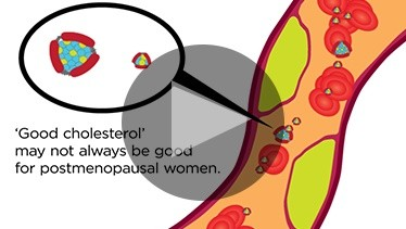 'Good Cholesterol' May Not Always Be Good For Postmenopausal Women