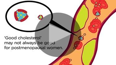 'Good Cholesterol' May Not Always Be Good For Postmenopausal Women